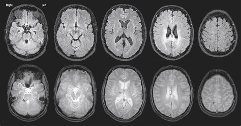 Cognitive Sequelae of Diffuse Axonal Injury   Traumatic